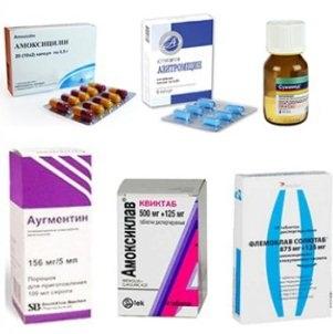 Причины появления и методы лечения пятен и зуда в паху