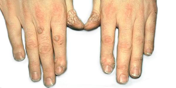 Причины появления и симптомы бородавок на руках