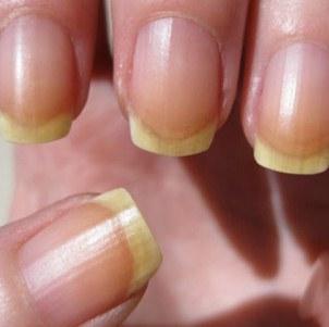 Методы лечения грибка ногтей при беременности