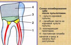 Схема пломбирования зуба