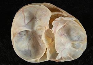 Муцинозная цистаденома яичника и ее особенности. Муцинозная цистаденома яичника у женщин и ее симптомы