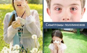 Симптомы поллинозов