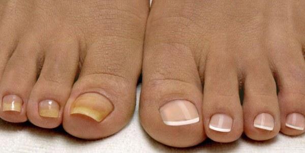 Чего как огня боится грибок ногтей на ногах