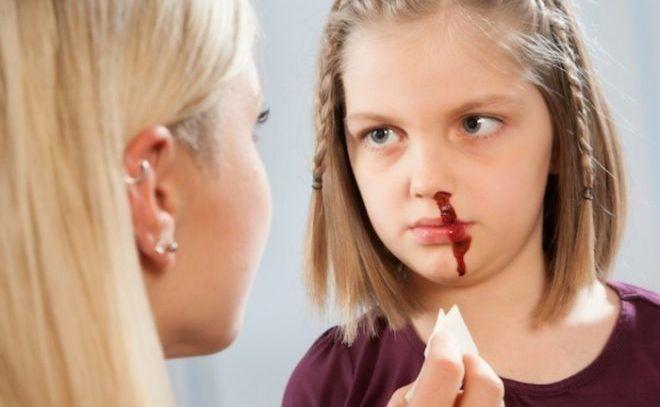 Кровь из носа- как последствие ЛОР заболеваний