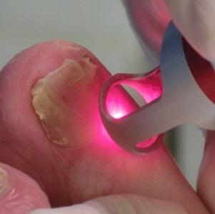 Отслоение ногтевой пластины: причины, симптомы, лечение