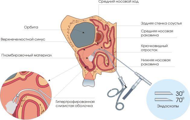 Классическая аденотомия