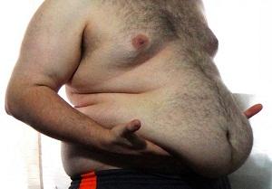 Морбидное ожирение лечение народными и медикоментозными средствами