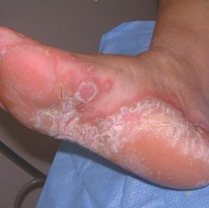 Патогенный мицелий на коже человека: причины, симптомы, лечение