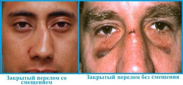 Закрытый перелом носа