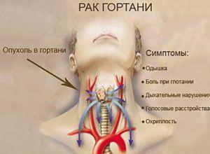 Рак горла причина ларингита