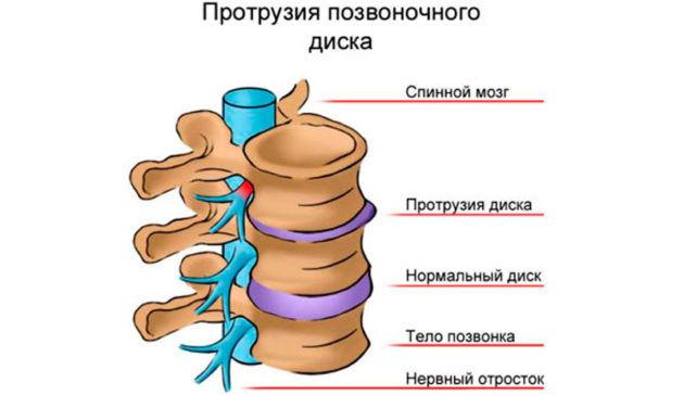 Дистрофическое нарушение межпозвоночных дисков