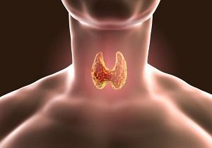 аденома паращитовидной железы симптомы