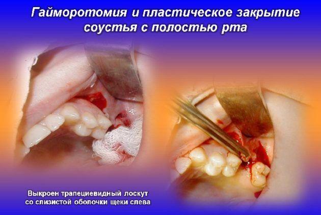 Гайморотомия