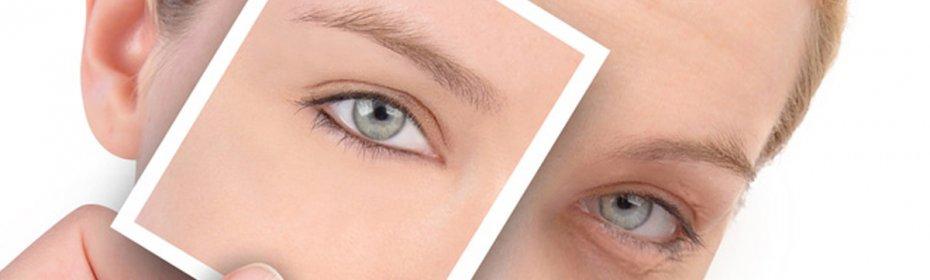 Зеленые синяки под глазами