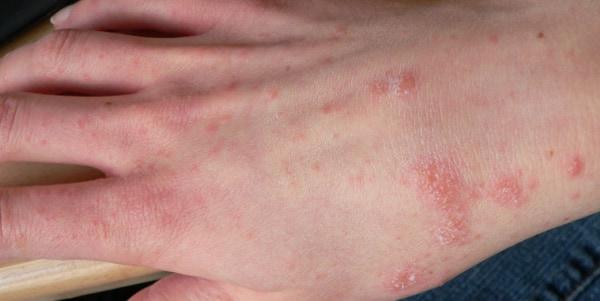 Почему не проходит крапивница после лечения у ребенка и взрослого
