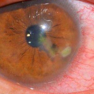 Первая помощь и лечение при ожоге глаз от сварки