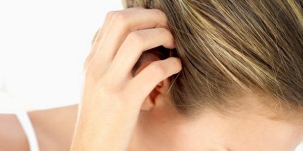 Экзема на голове в волосах: причины, чем лечить