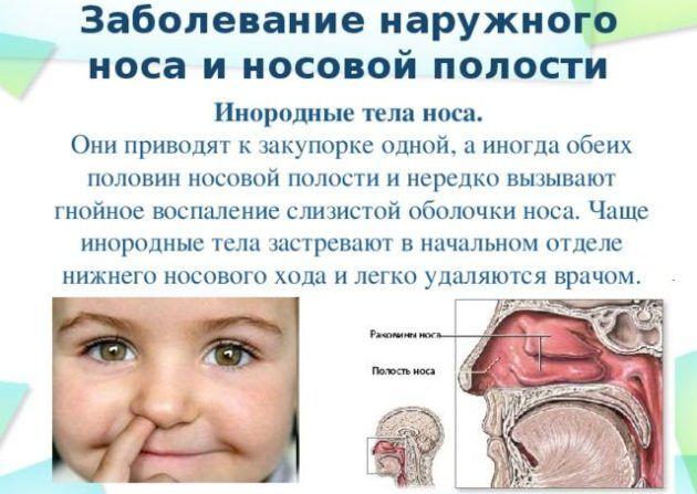 Инородные тела в носовой полости