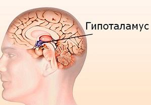 опухоли гипоталамуса и гипофиза симптомы у женщин