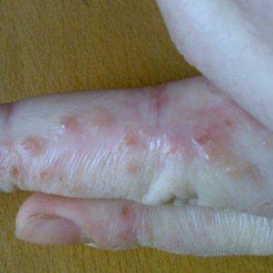 Экзема – заразная болезнь или нет?