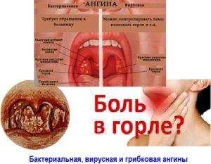 Инфекции горла - симптомы и список инфекционных заболеваний горла 2019