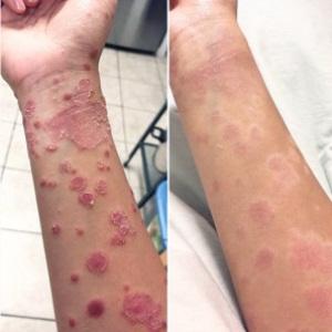 Применение лосьона и мази Белосалик при себорейном дерматите: отзывы и ожидаемые эффекты