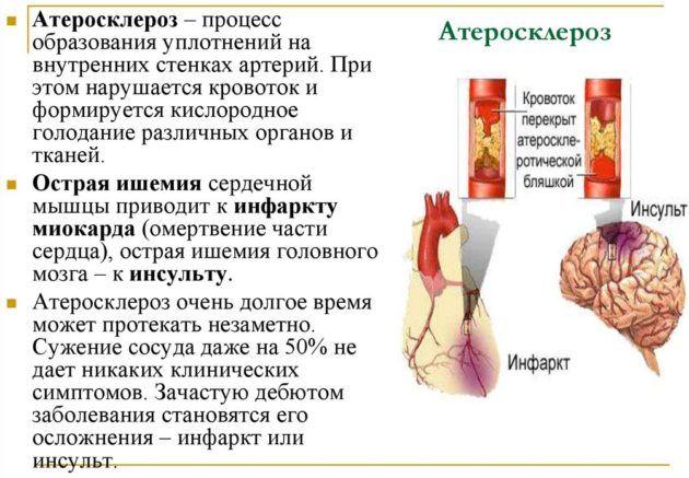 Атеросклероз влечет за собой ухудшение слуха