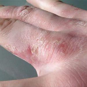 Причины и лечение аллергической экземы