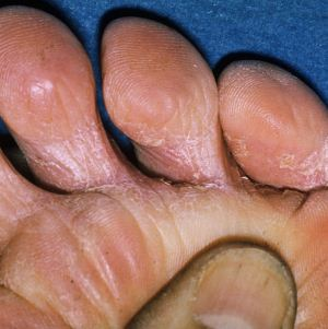 Грибковое поражение стопы: причины, симптомы, методы диагностики и лечения