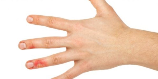 Что делать при ожоге пальцев — первая помощь и лечение