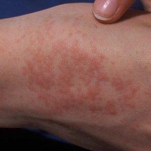 Эффективность раствора Клотримазол в лечении грибка ногтей, отзывы и подробная инструкция по использованию препарата