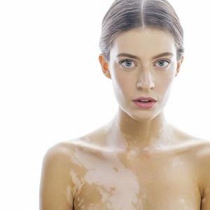 Причины появления и методы лечения белых пятен на коже