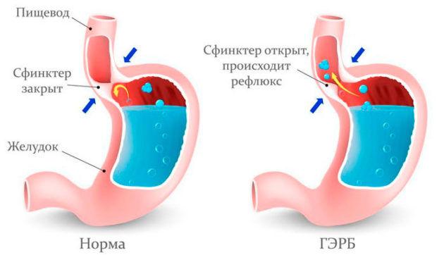 Гастроэзофагеальный рефлюкс