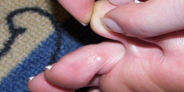 Мозоль между пальцами ног: что делать, как избавиться