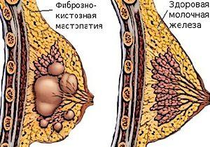 Дисгормональныезаболевания молочных желез