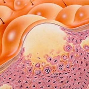 Мокнущий дерматит: особенности болезни и пути лечения