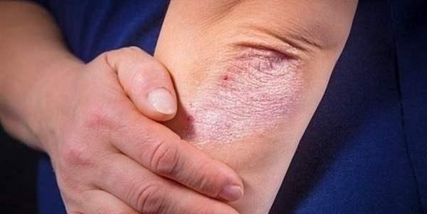 Как быстро вылечить симптомы псориаза и достигнуть длительной ремиссии