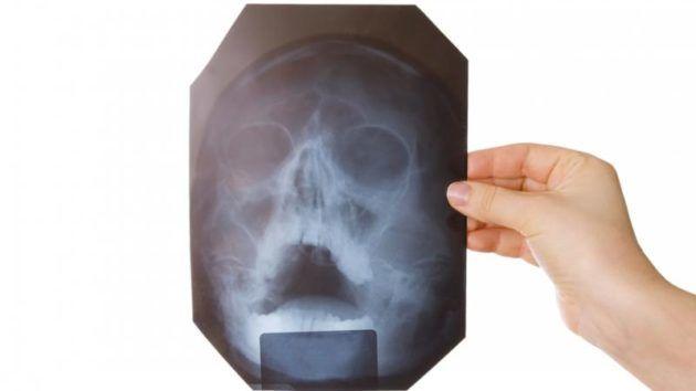 Для уточнения диагноза проводится рентген околоносовых пазух