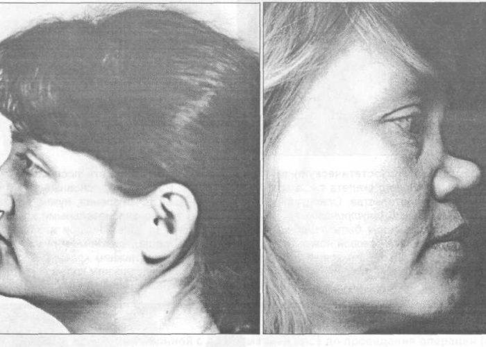 Формирование седловидного носа