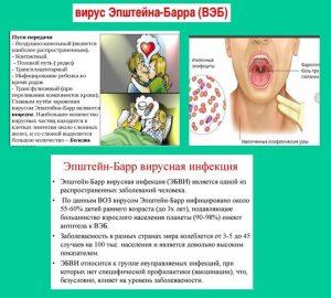 Лечение вируса Эпштейна-Барр