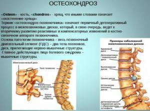 Остеохондроз является провокатором аллергической реакции