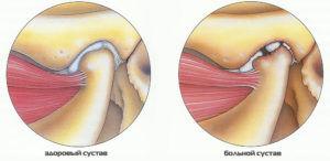 Болит ухо и челюсть с одной стороны при жевании