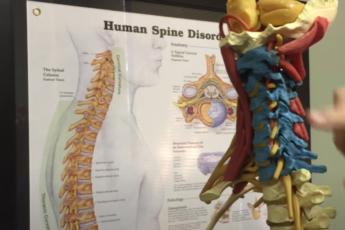 Разница между нормальной шеей и шейным кифозом