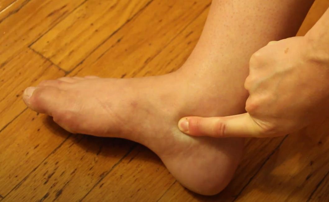 опухшие ступни