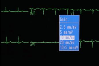 Возможно ли обнаружить жидкость вокруг сердца на экг?