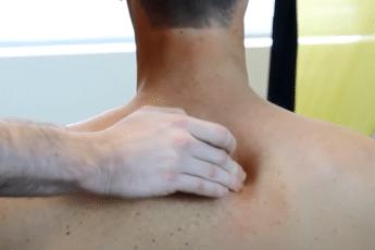 кальцифицирующий тендинит может сопровождаться болью в плече и руке