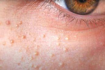 Проявление милиумов - белых точек на лице